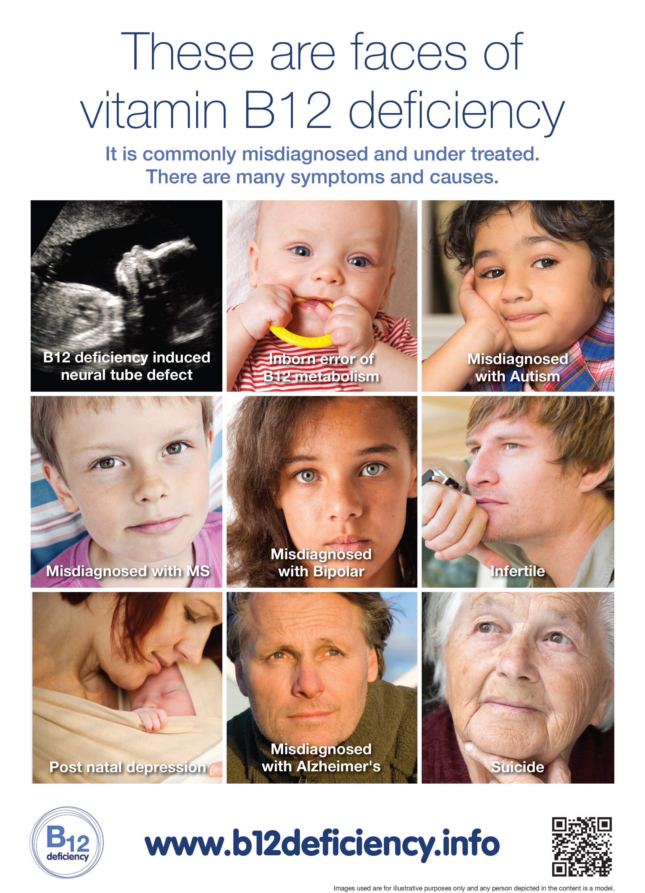 There are many faces of Vitamin B12 deficiency………. | b12 ... B12 Deficiency Tongue